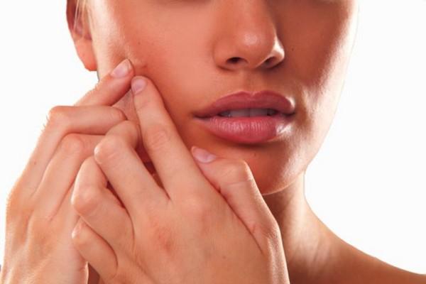 acnee hormonala femei